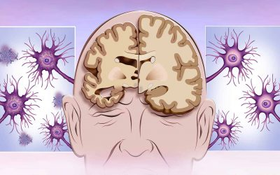 The 5 Stages of Alzheimer's Disease